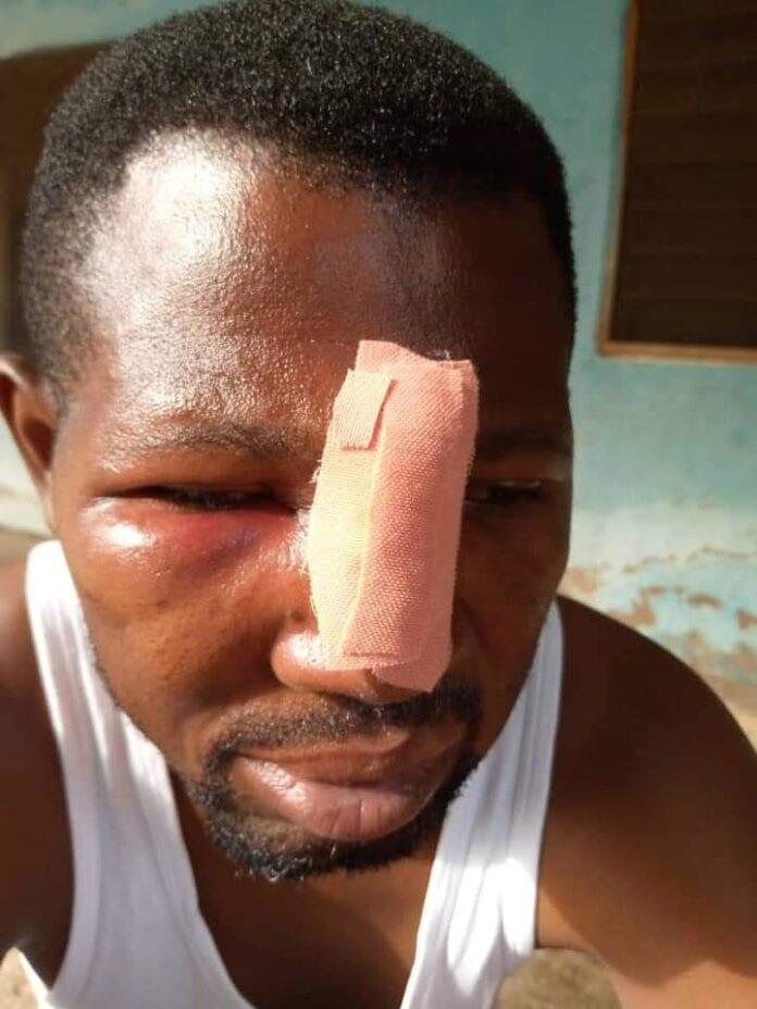 Nungua: JHS student and his gang attack teacher over homework | Adomonline.com